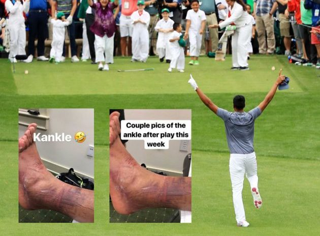 ICYMI: Tony Finau Finished T-10 at His First Masters With the Most Broken Ankle